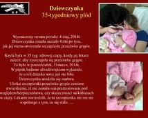 19. Dziewczynka, 35-tygodniowy płód