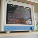 kardiomonitor podczas operacji